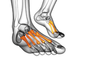 The metatarsal bones